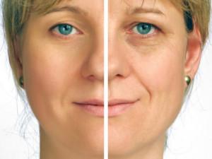 Il-Biosculpturing-il-lifting-al-viso-da-fare-dopo-i-50-anni